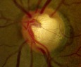 Glaucomatous Optic Nerve